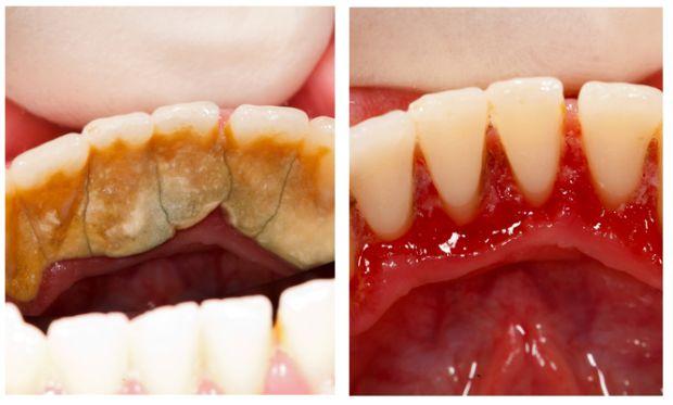 Как можно избавится от зубного камня в домашних условиях - Water-Mart.Ru
